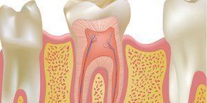 endodoncia-1